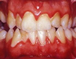 Gingivitis tratamiento